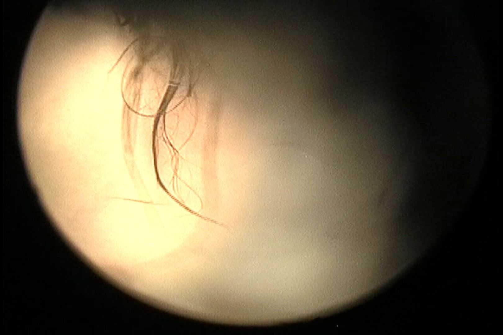No.24 ビキニの割には陰毛は獰猛、ハミ毛が心配 綺麗な乙女 | 接写  66連発 55
